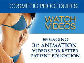 3D Animation Video Library for Better Patient Education