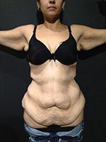 Before Photo of Brachioplasty Miami Arm Lift Surgery Patient