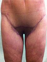 After Photo of Thigh Lift Body Sculpting Surgery Patient