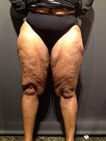 Before Photo of Thigh Lift Miami Body Sculpting Surgery Patient