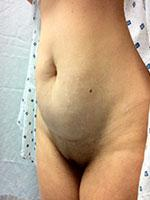 Before Photo of Tummy Tuck (Abdominoplasty) Surgery Patient