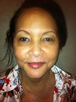 After Photo of Facelift Miami - Rhytidectomy Surgery Patient