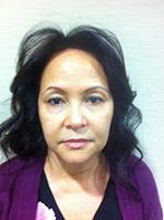 Before Photo of Facelift Miami - Rhytidectomy Surgery Patient