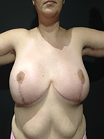 After Photo of Brachioplasty Miami Upper Body Lift Sculpting Surgery Patient