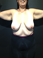 Before Photo of Brachioplasty Miami Upper Body Lift  Sculpting Surgery Patient