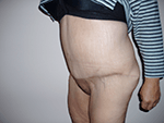After Photo of  Plastic Surgery Patient  After  Excess Weight Loss