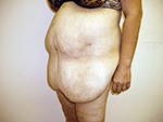 Before Photo of  Plastic Surgery Patient  After  Excess Weight Loss