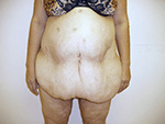 Before Photo of  Weight Loss Surgery Miami  After  Excess Weight Loss