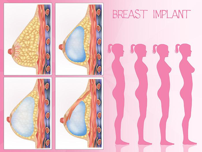 Selecting the Right Size for Your Breast Implant
