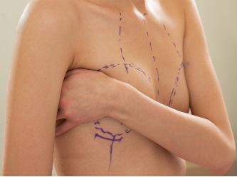 life After Breast Reconstruction: What to Expect