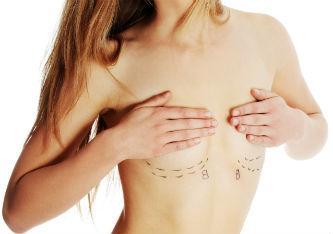 Top 10 Breast Reconstruction Myths Debunked