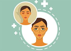 FaceLift Facts, Myths and Reality!