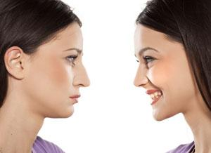 Before You Decide to Have a Rhinoplasty