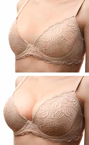 breast augmentation nyc before after