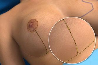 A Quick Look At Breast Reduction Scars And How To Manage Them Video