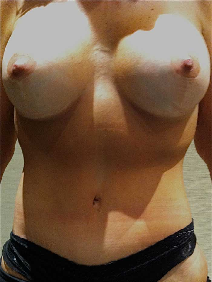 Tummy Tuck – Abdominoplasty 22 after