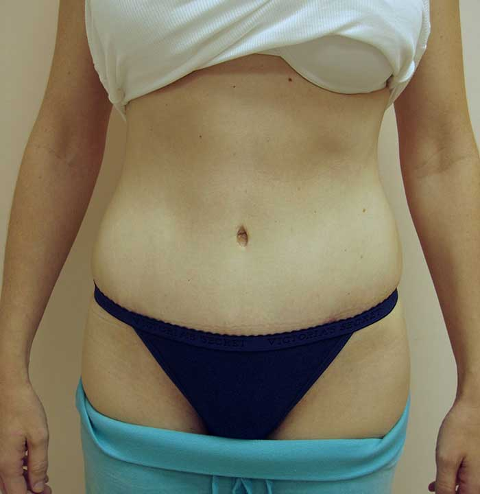 Tummy Tuck – Abdominoplasty 5 after