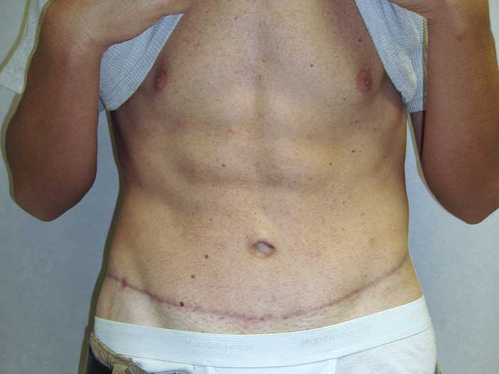 Tummy Tuck – Abdominoplasty 12 after