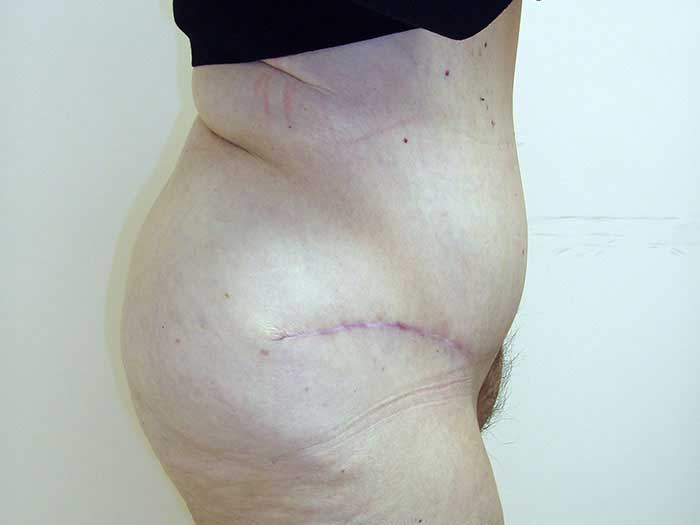 Tummy Tuck – Abdominoplasty 16 after
