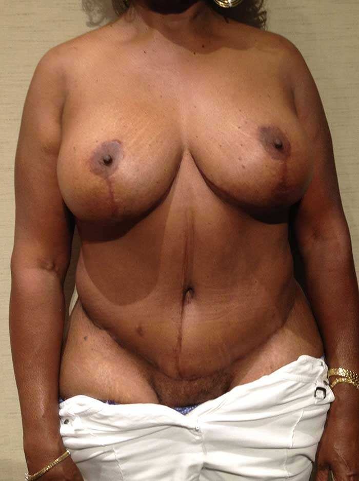Tummy Tuck – Abdominoplasty 17 after