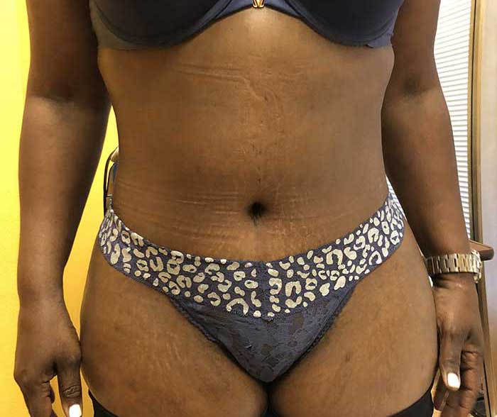 Tummy Tuck – Abdominoplasty 25 after