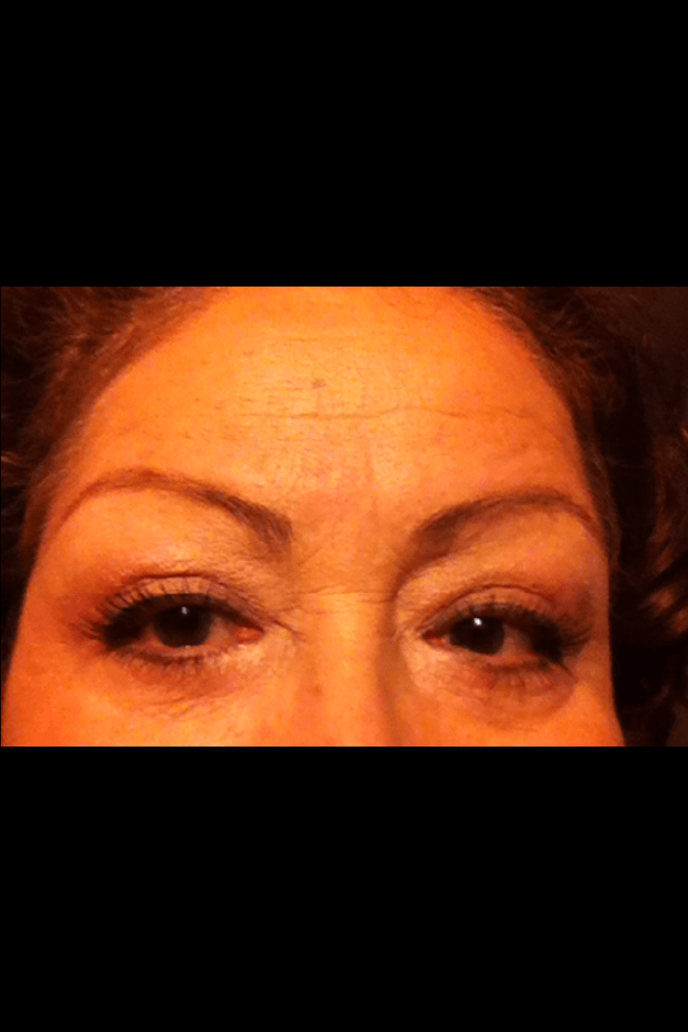 eye lid lift 1 after