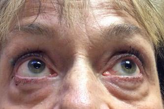 Blepharoplasty preop 2A