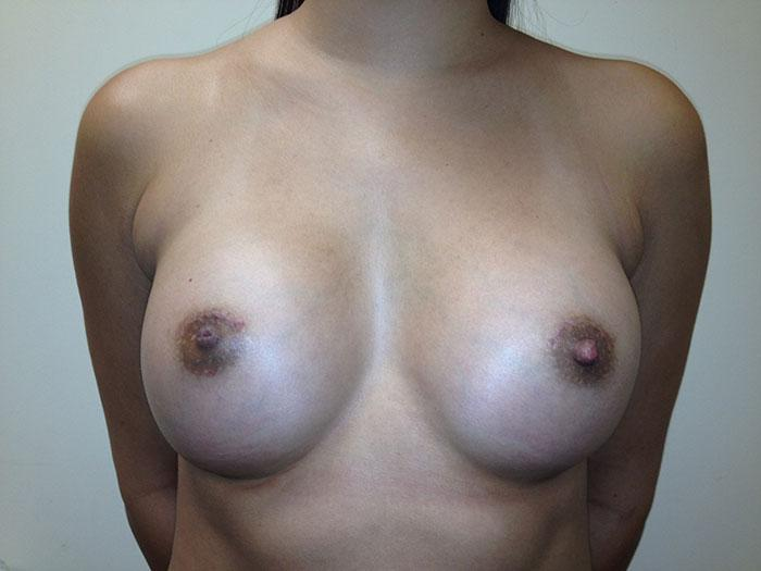 Breast Augmentation Miami 1  after