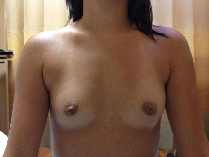 Breast Augmentation Miami 1