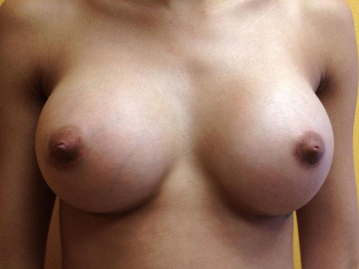 Breast Augmentation 3 after