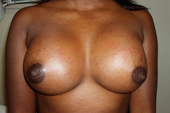 Breast Augmentation 5 after