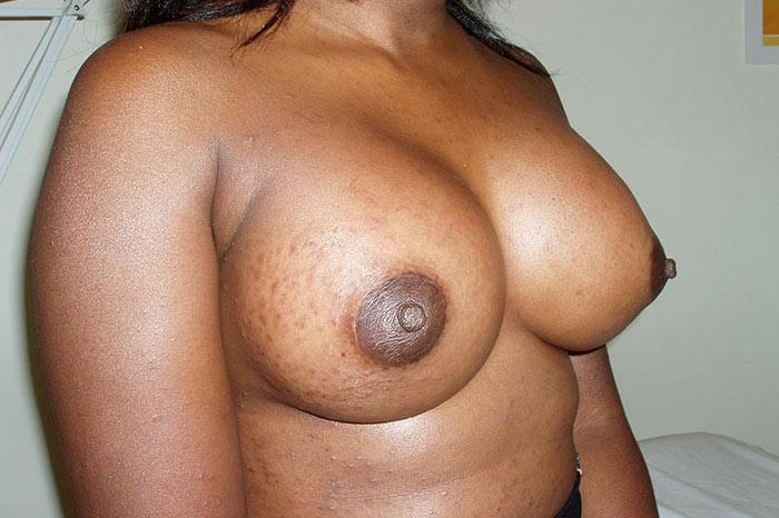 Breast Augmentation 6 after