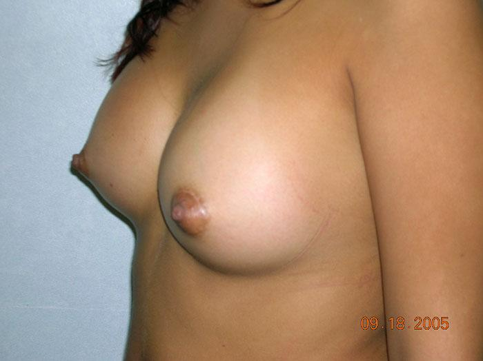 Breast Augmentation 13 after