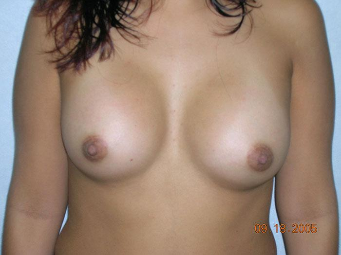 Breast Augmentation 12 after