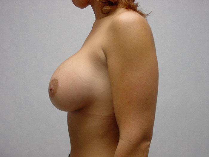 Breast Augmentation 15 after