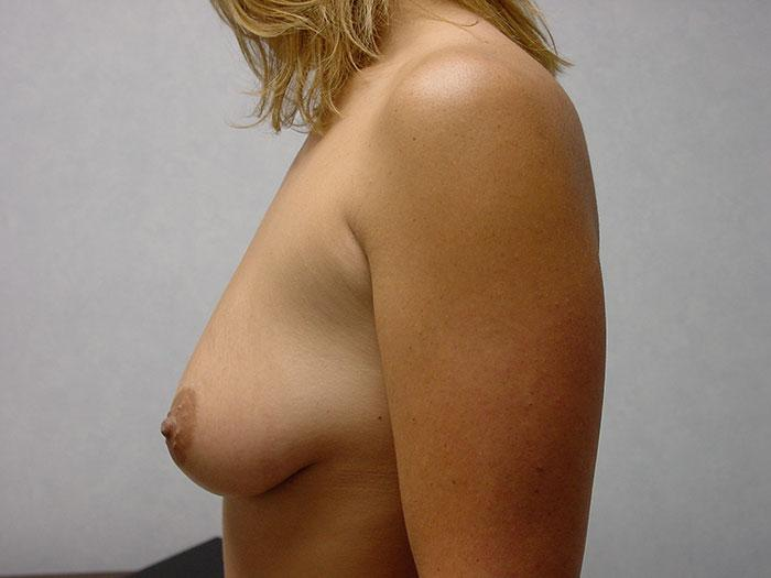 Breast Augmentation 15