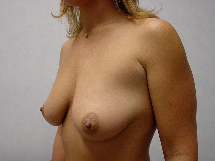 Breast Augmentation 14