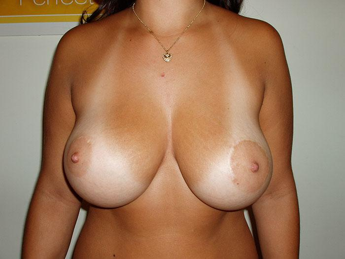 Breast Augmentation 16 after