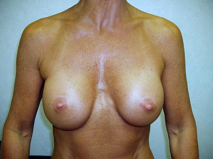Breast Augmentation 18 after
