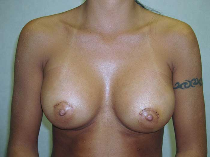 Breast Augmentation 19 after