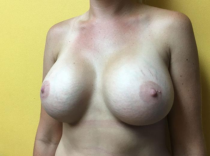 Breast Augmentation 25 after