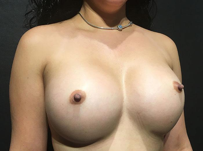 Breast Augmentation 23 after
