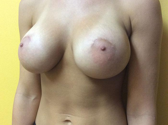 Breast Augmentation 24 after