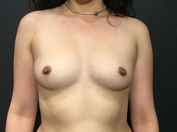 Breast Augmentation 23