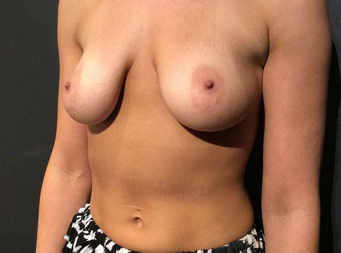 Breast Augmentation 24