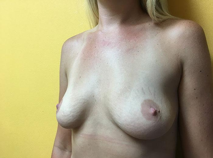 Breast Augmentation 25