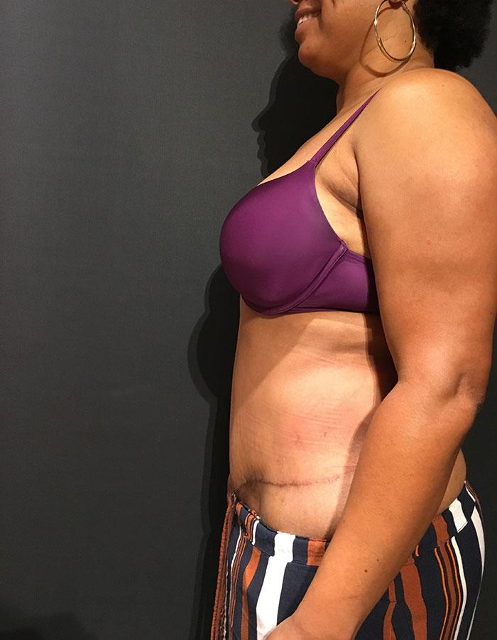 Tummy Tuck – Abdominoplasty 23 after