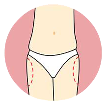 thigh lift surgery scars